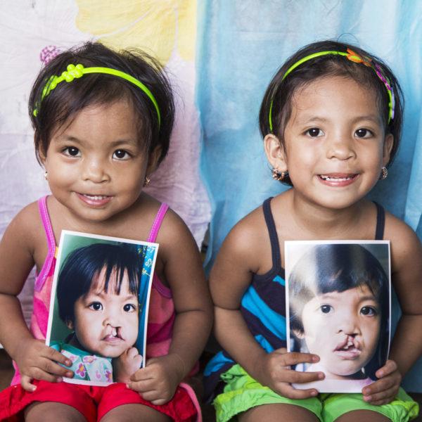 glada tvillingar efter operation för läppspalt