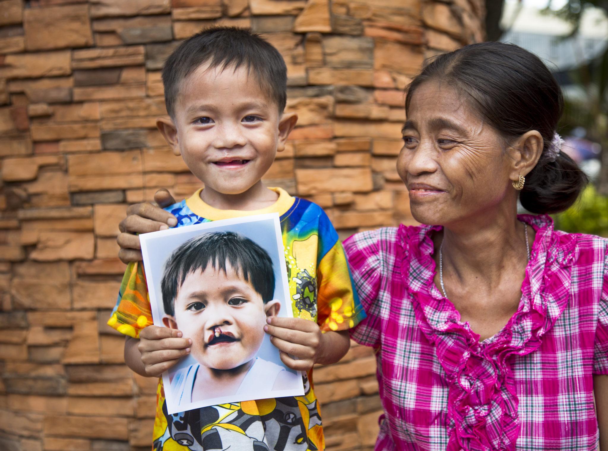 glad och tacksam pojke med sin mamma efter operation