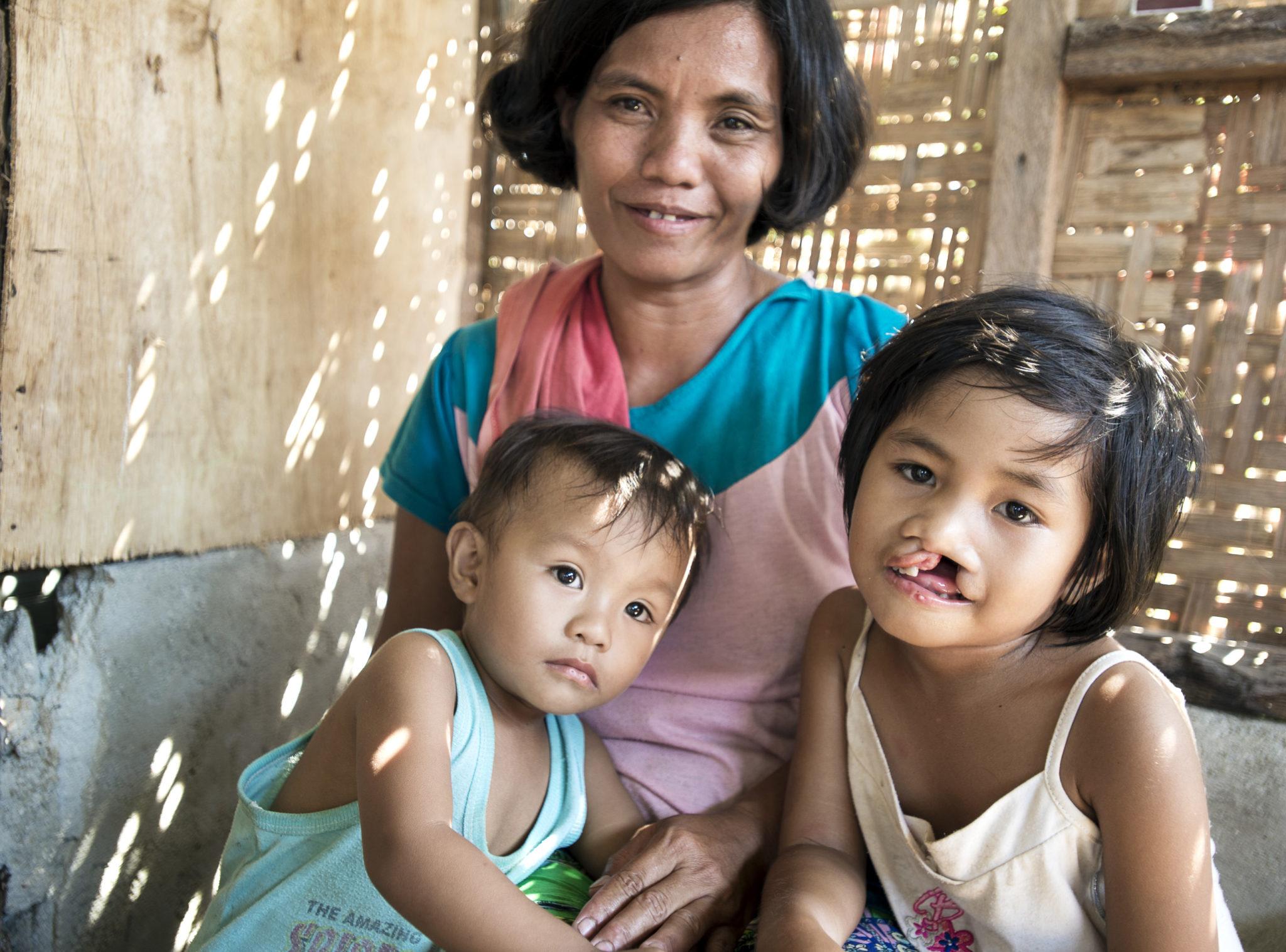 flicka och hennes familj med läpp-käk-gomspalt
