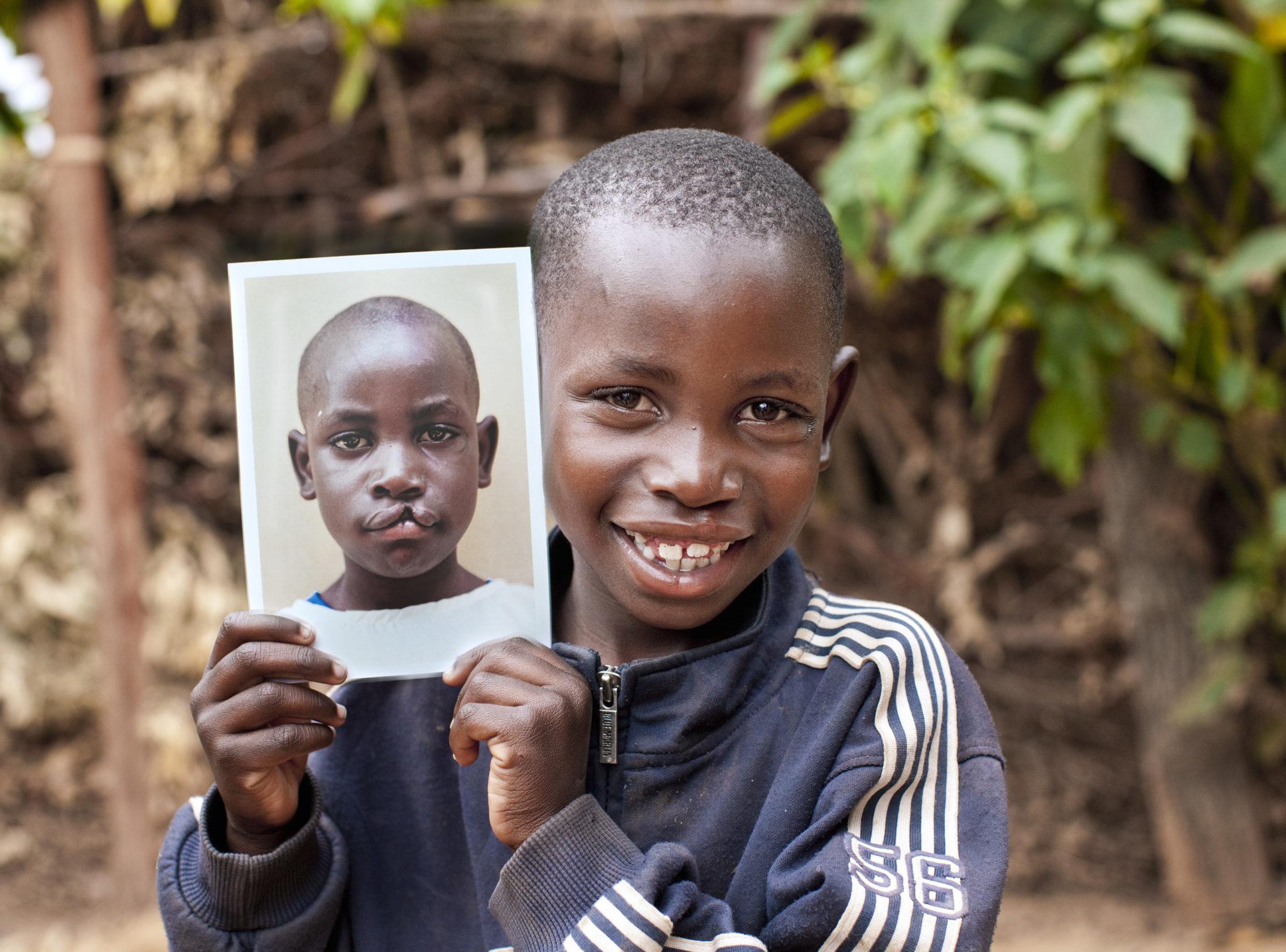 glad pojke före och efter operation