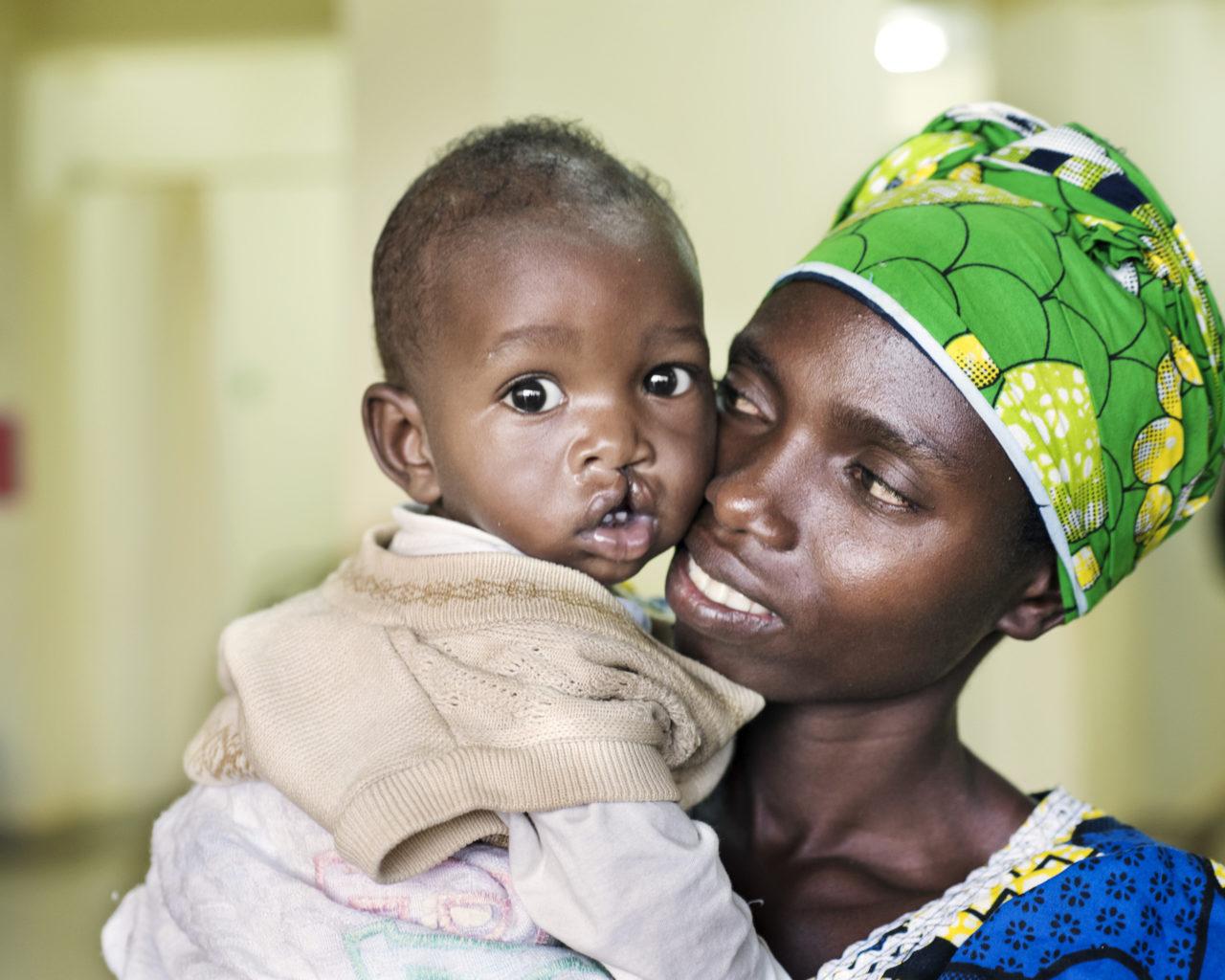 liten pojke med läppspalt i rwanda
