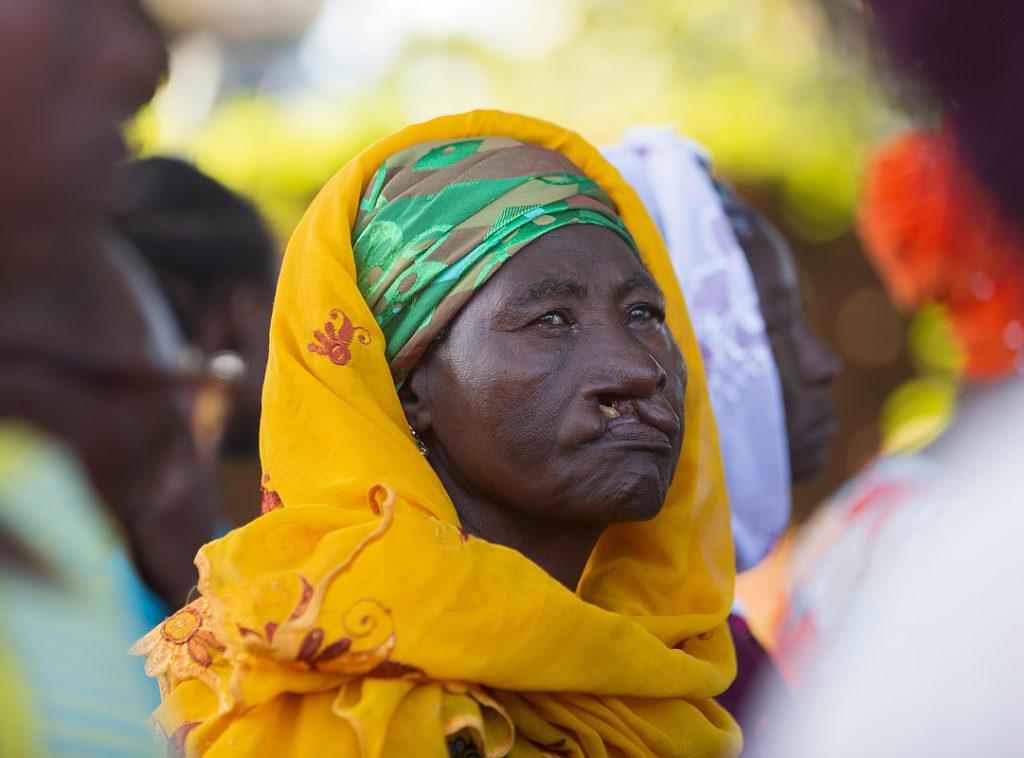 gammal kvinna med läpp-käk-gomspalt väntar på operation