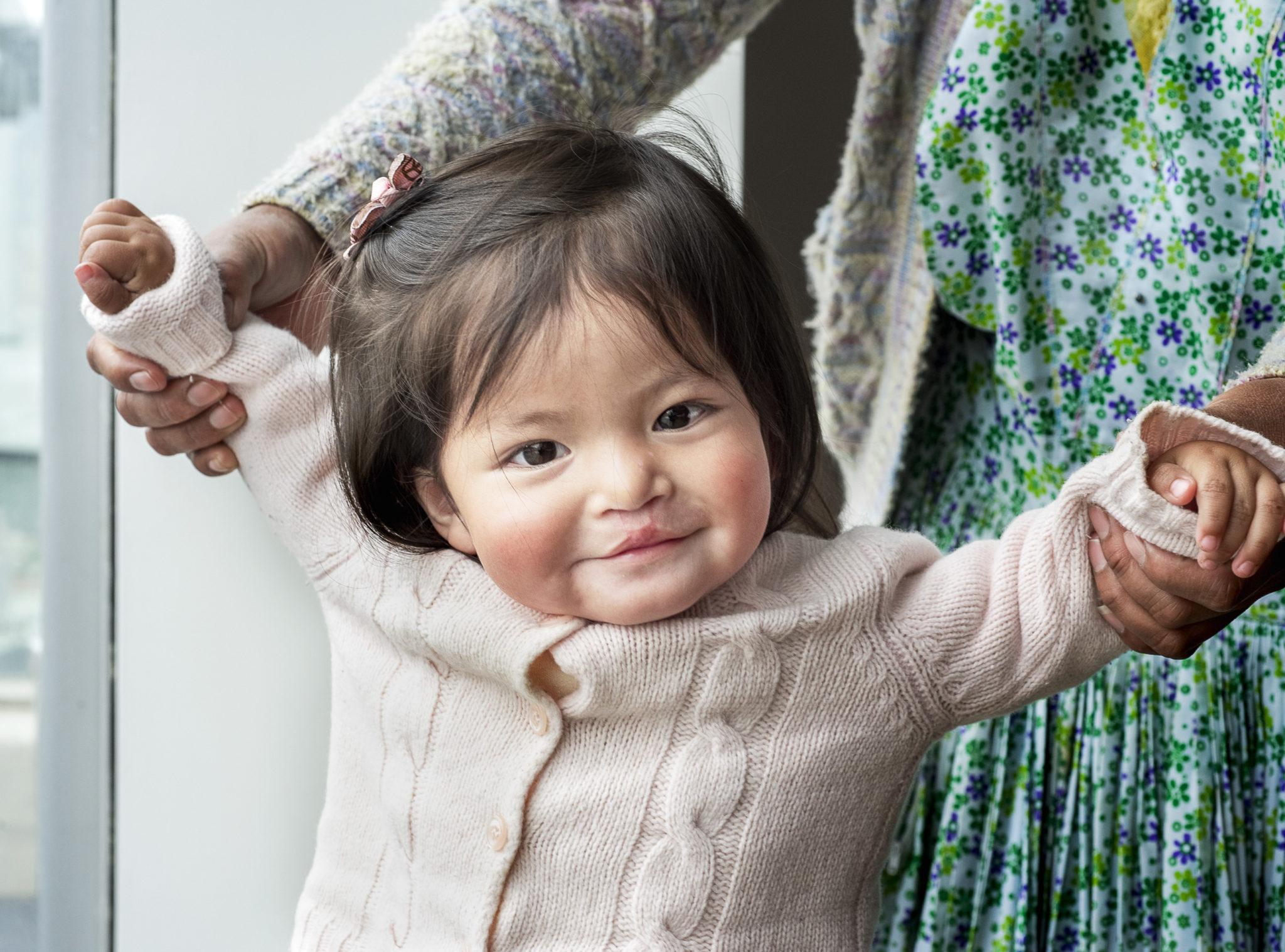 flicka 8 månader gammal strålar av glädje efter sin operation