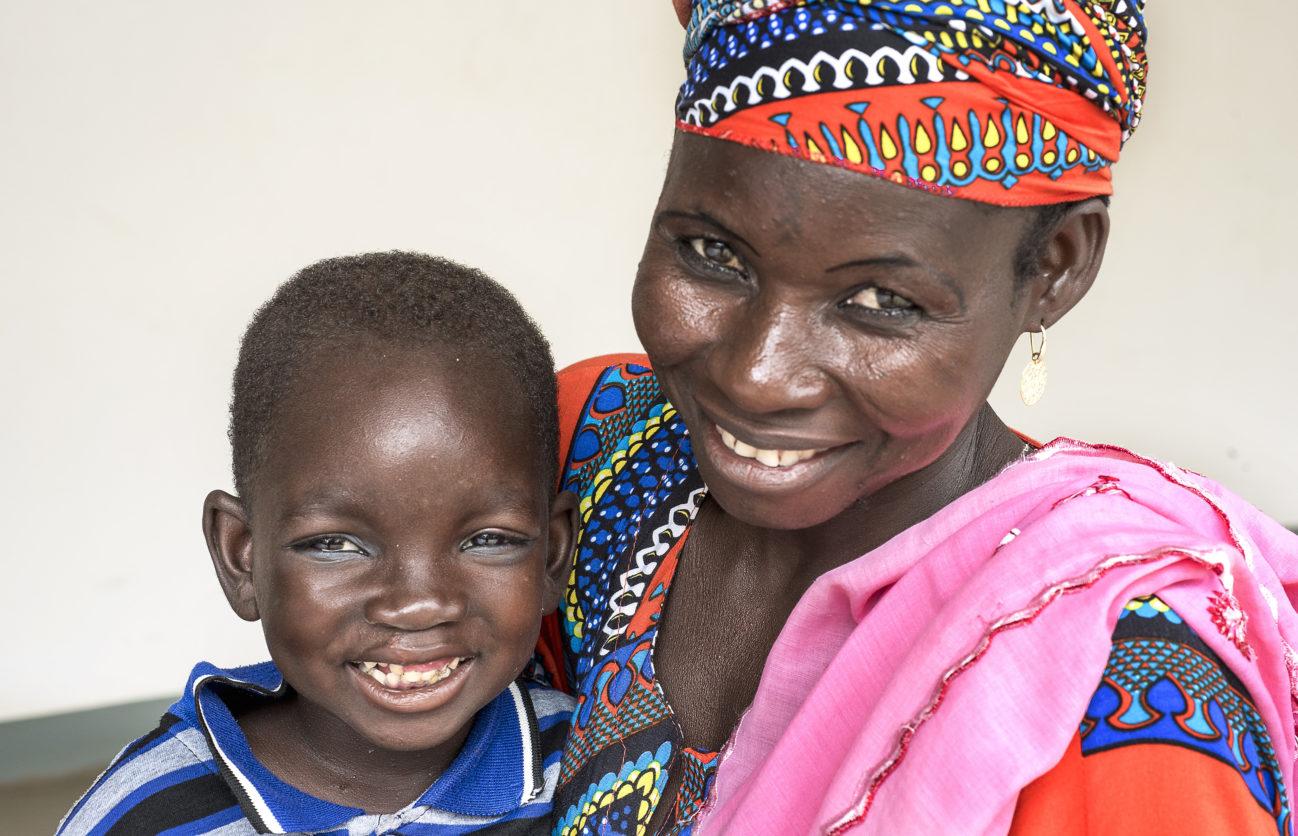 Barn efter operation av Operation Smile